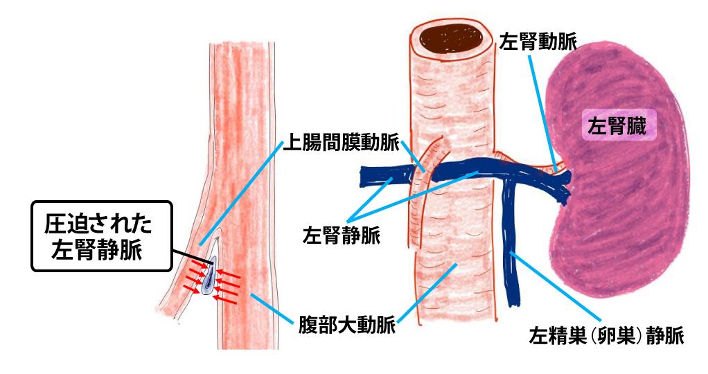 ナット クラッカー 症候群 血尿診断ガイドライン - jsn.or.jp
